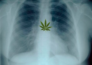 chest-x-ray-full-size-landscape